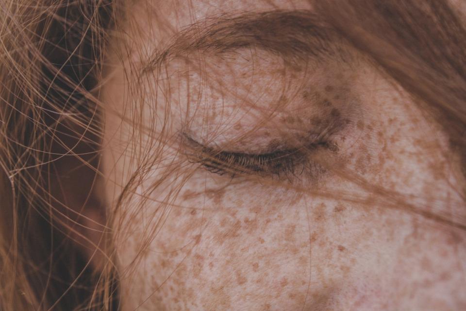 Bleichcreme: Pigmentflecken loswerden in kurzer Zeit